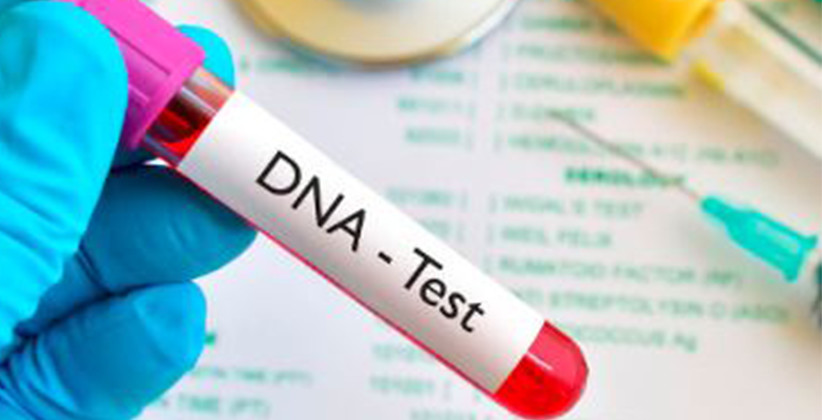 DNA Test Of Accused Should Not Be Ordered Without Appropriate Requirement: SC [Read Judgment]